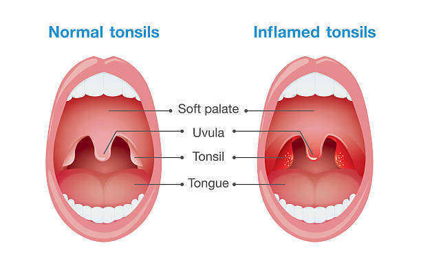 Normal tonsils and inflamed tonsils. Comparison between normal tonsils and inflamed tonsils. This illustration about health care and medical. sore throat stock illustrations