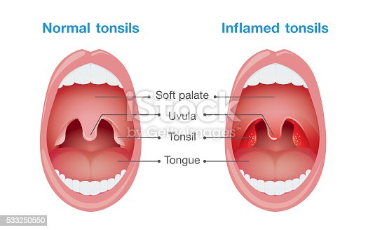 Normal Tonsils And Inflamed Tonsils Stock Vector Art ...  Normal Tonsils ...