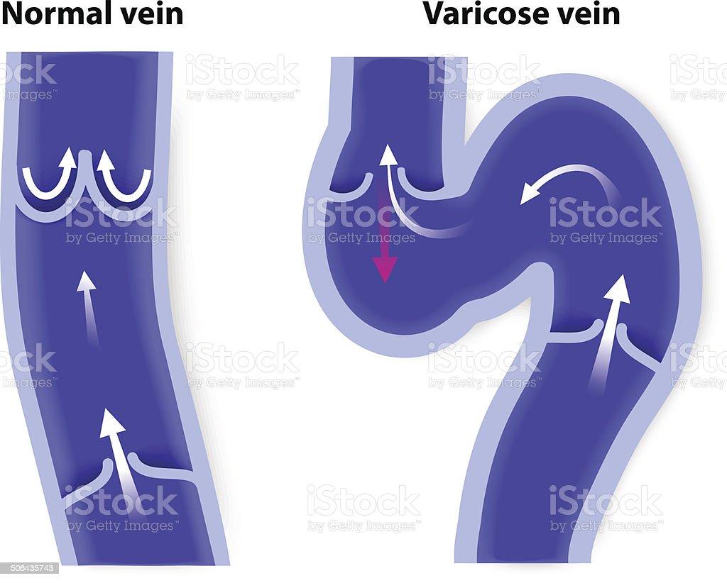 Krampfader Und Normale Vene Vektor Illustration 506435743   iStock