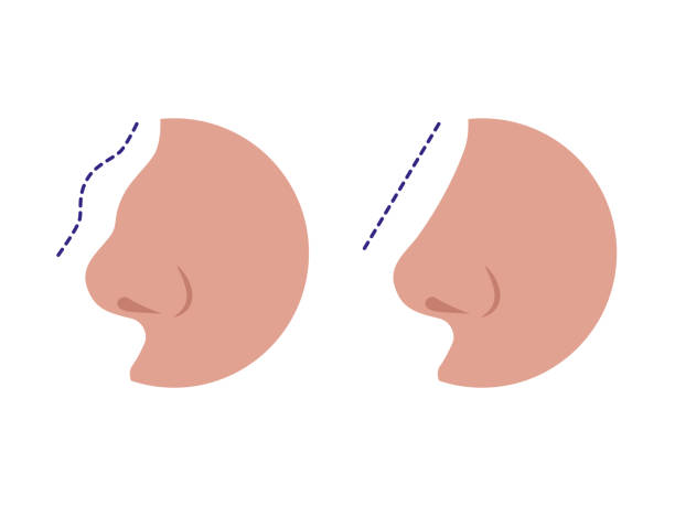 Nose before and after rhinoplasty correction Nose before and after rhinoplasty correction isolated on a white background. Comparison of female nose after plastic surgery. Vector illustration of a rhinoplasty concept. septum stock illustrations