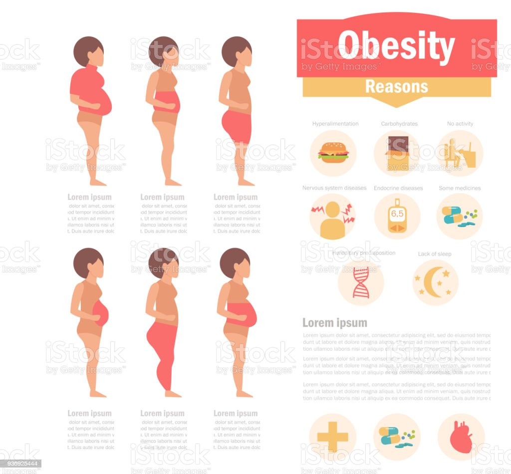 Obesity types and causes vector art illustration