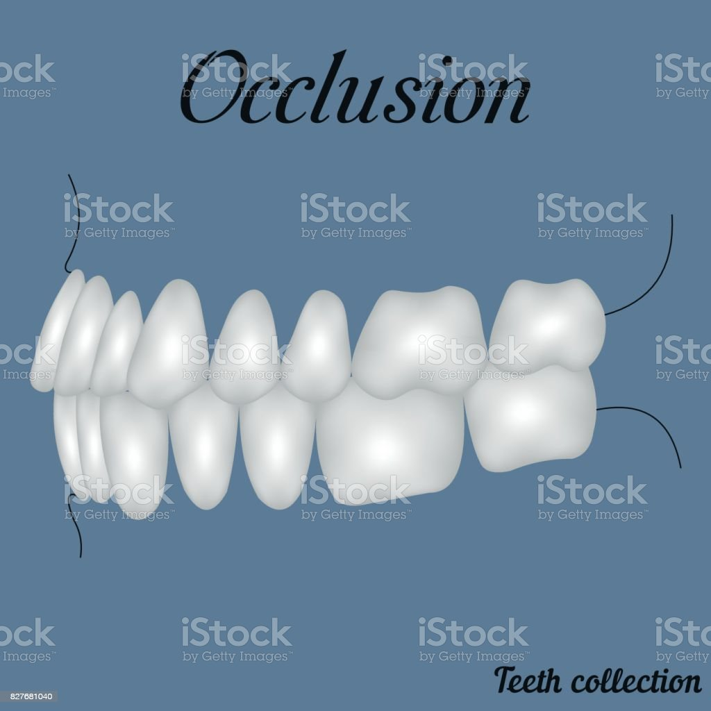 occlusion side view vector art illustration