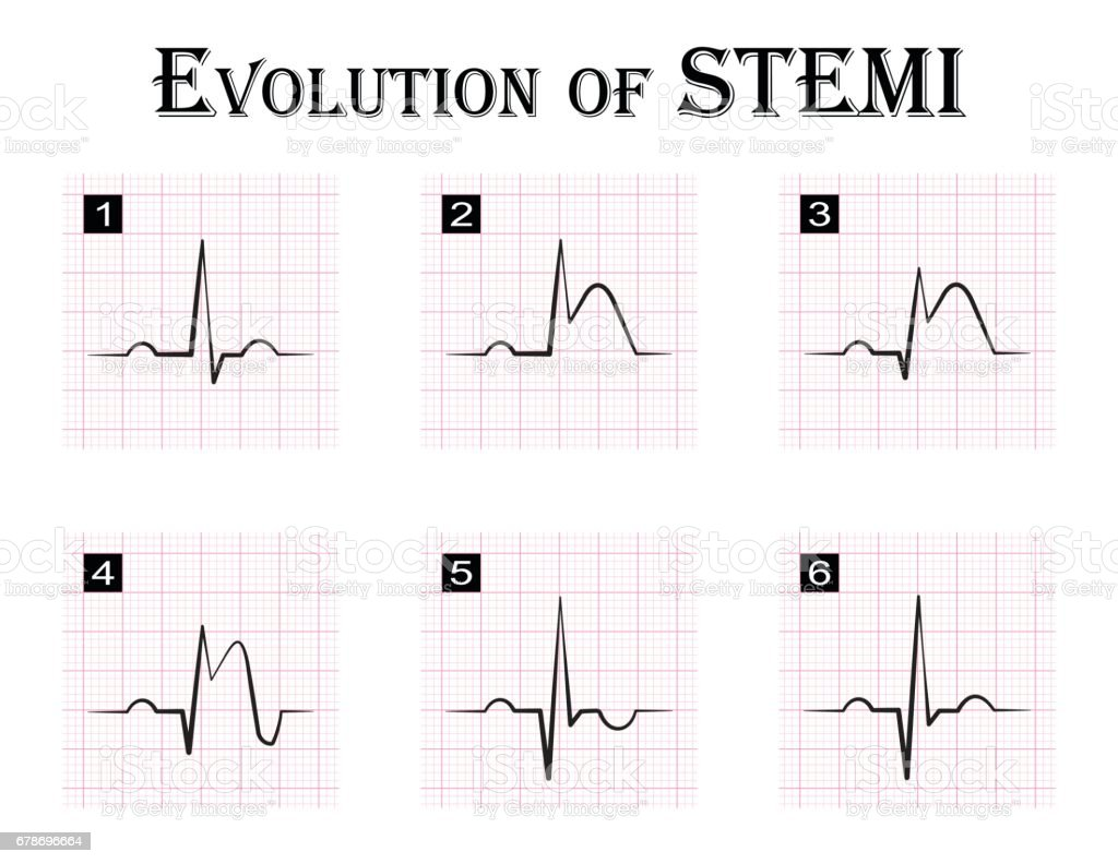 Ecg of evolution acute coronary syndrome angina pectoris stock ecg of evolution step by step of stemi st elevation myocardial infarction ccuart Gallery