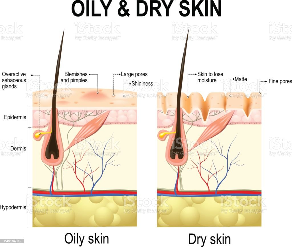 Oily and dry skin vector art illustration