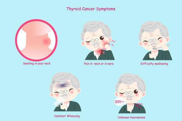 ilustraciones, imágenes clip art, dibujos animados e iconos de stock de anciano con cáncer de tiroides - thyroxine