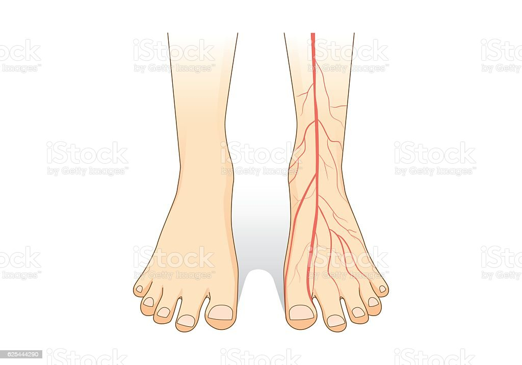 One foot showing a red blood vessel on skin. vector art illustration