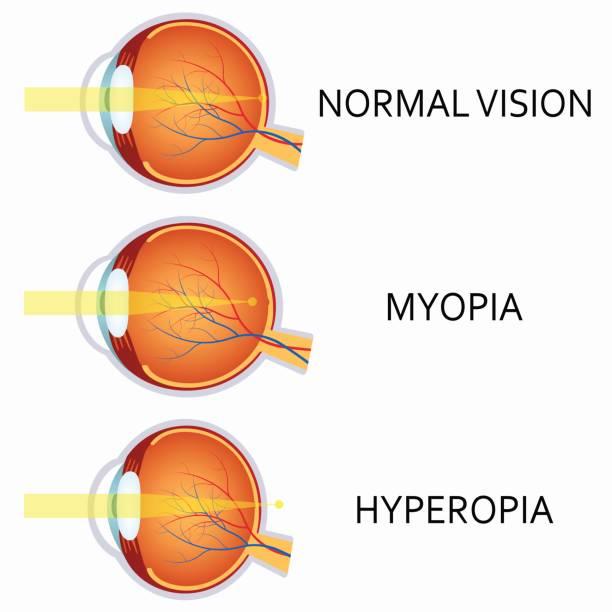 Myopia fotó - Myopia gyermekeknél: okok, kezelés, megelőzés