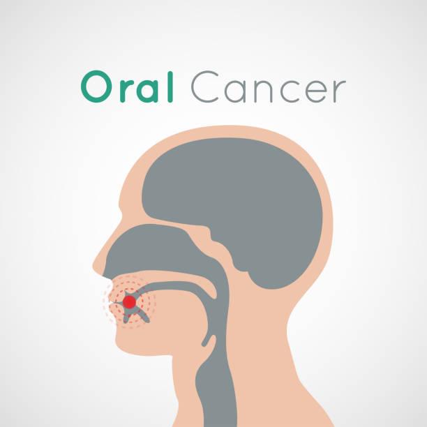Oral Cancer vector icon design illustration vector art illustration