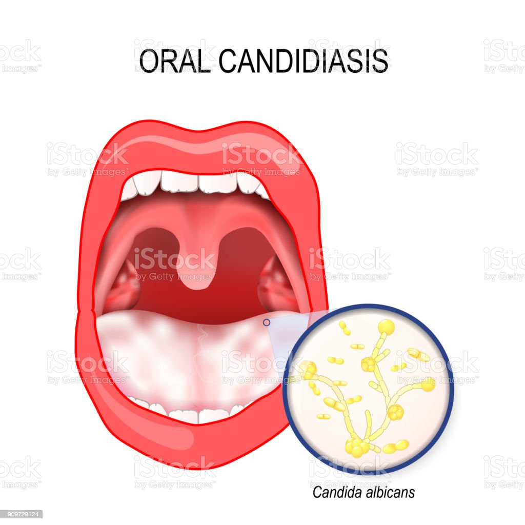 oral candidiasis. yeast infection ofl Candida albicans the mouth. vector art illustration