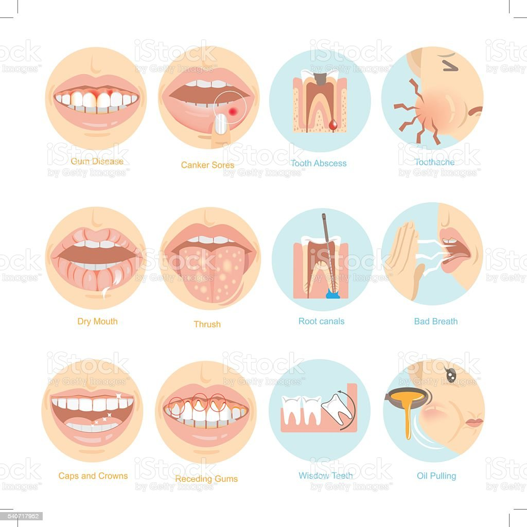 Oral problems vector art illustration