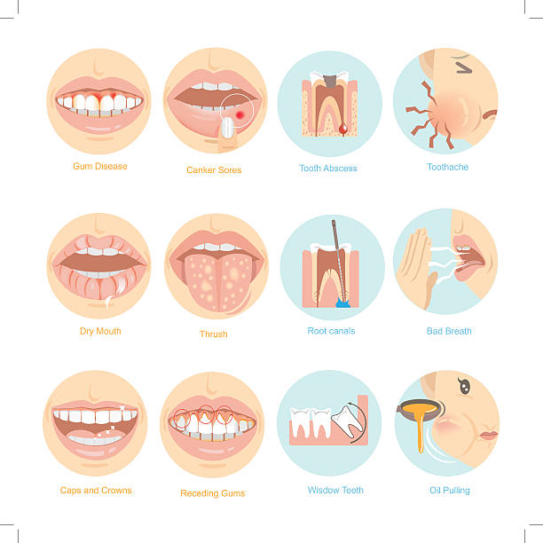 stockillustraties, clipart, cartoons en iconen met oral problems - wortelkanaal