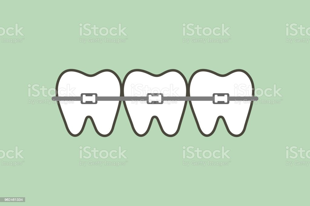 orthodontic teeth or dental braces vector art illustration