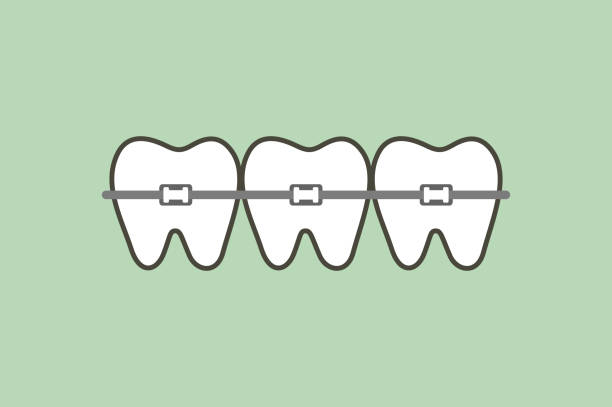 illustrations, cliparts, dessins animés et icônes de orthodontie dents ou orthèses dentaires - orthodontiste