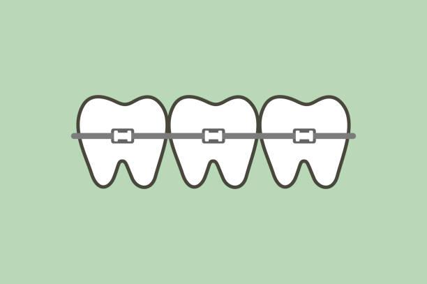 ilustraciones, imágenes clip art, dibujos animados e iconos de stock de los dientes ortodoncicos o brackets dentales - ortodoncista