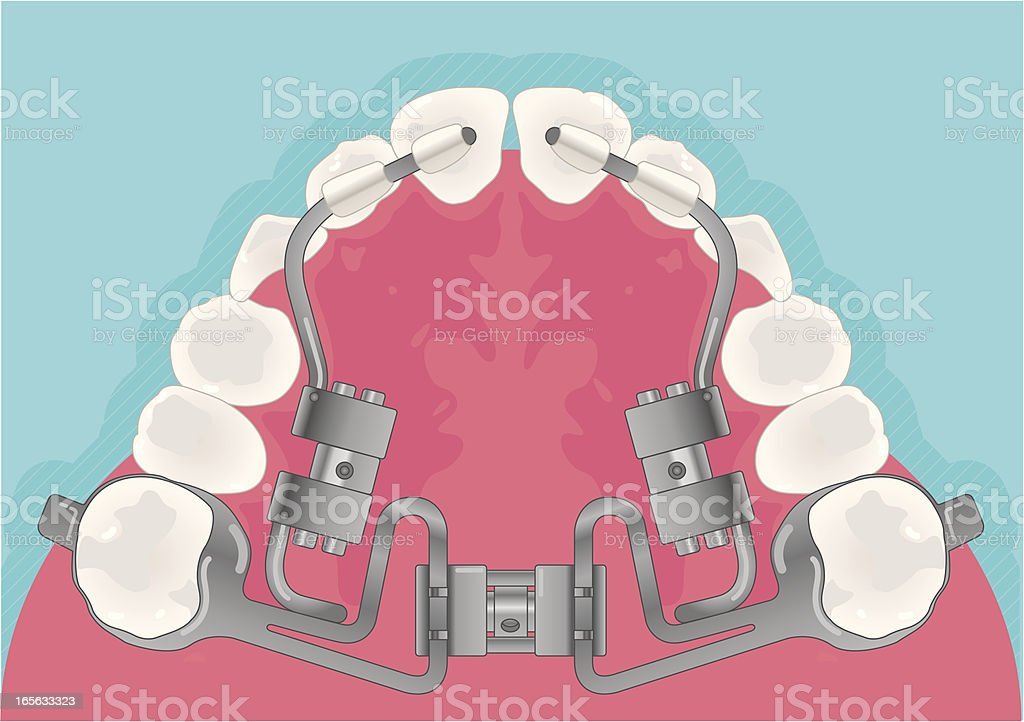 Orthodontic vector art illustration