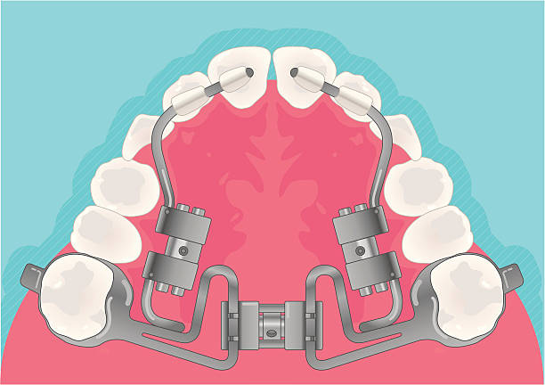 orthodontic - orthodontist stock illustrations, clip art, cartoons, & icons