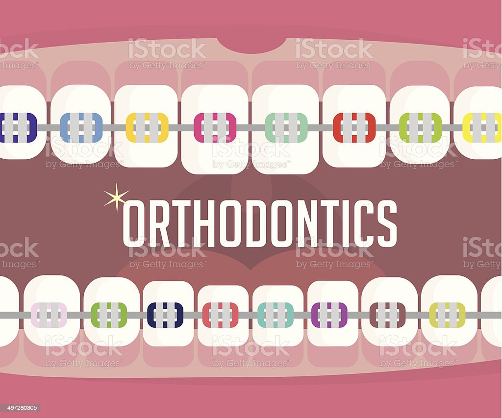 Orthodontics, braces vector art illustration