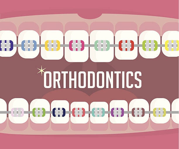 illustrations, cliparts, dessins animés et icônes de orthodontics, appareil dentaire - orthodontiste