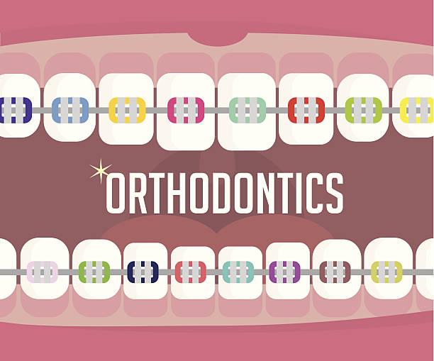 ilustraciones, imágenes clip art, dibujos animados e iconos de stock de orthodontics, aparatos de ortodoncia - ortodoncista