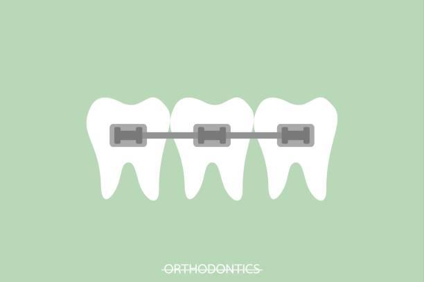 ilustraciones, imágenes clip art, dibujos animados e iconos de stock de ortodoncia los dientes o aparatos dentales - ortodoncista