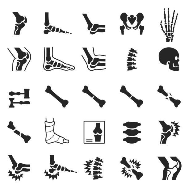 정형 외과 아이콘 세트 - 관절 stock illustrations
