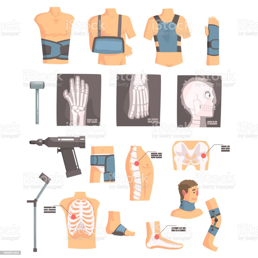 Orthopedic Surgery And Orthopaedics Attributes And Tools Set Of Cartoon Icons With Bandages, X-rays And Other Medical Objects royalty-free orthopedic surgery and orthopaedics attributes and tools set of cartoon icons with bandages xrays and other medical objects stock vector art & more images of anatomy