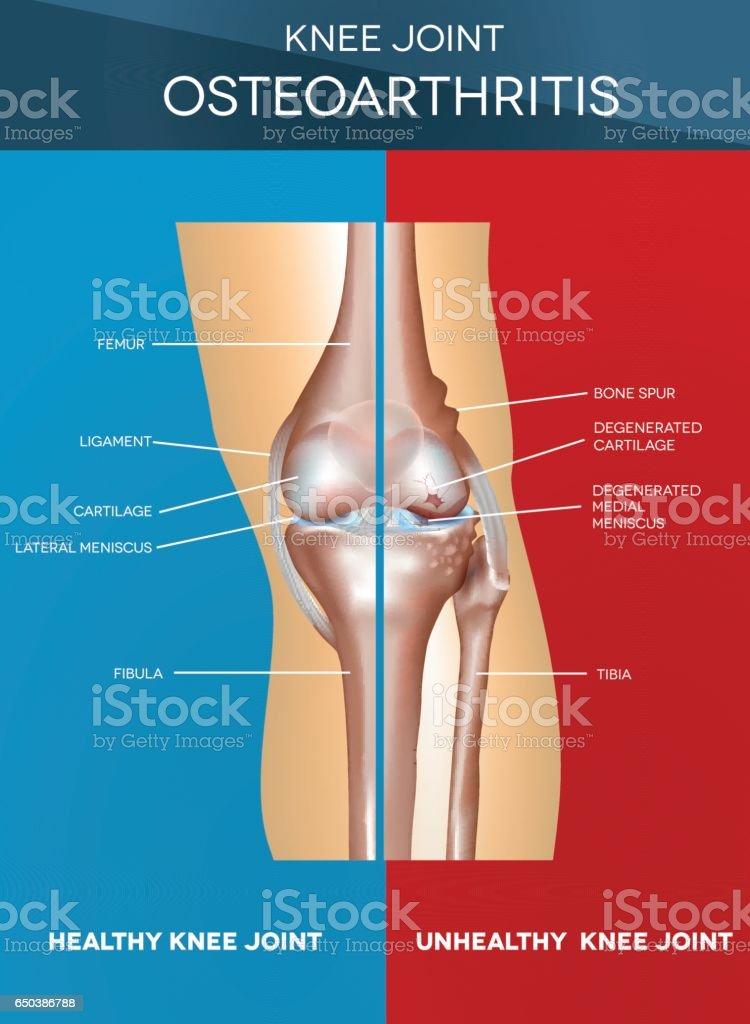 Osteoarthritis and normal joint vector art illustration