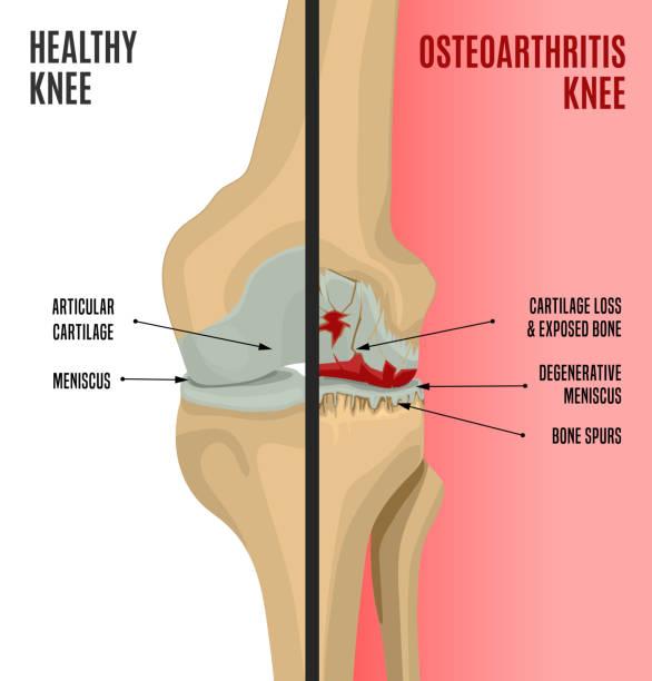 illustrazioni stock, clip art, cartoni animati e icone di tendenza di osteoarthritis knee poster - impastare