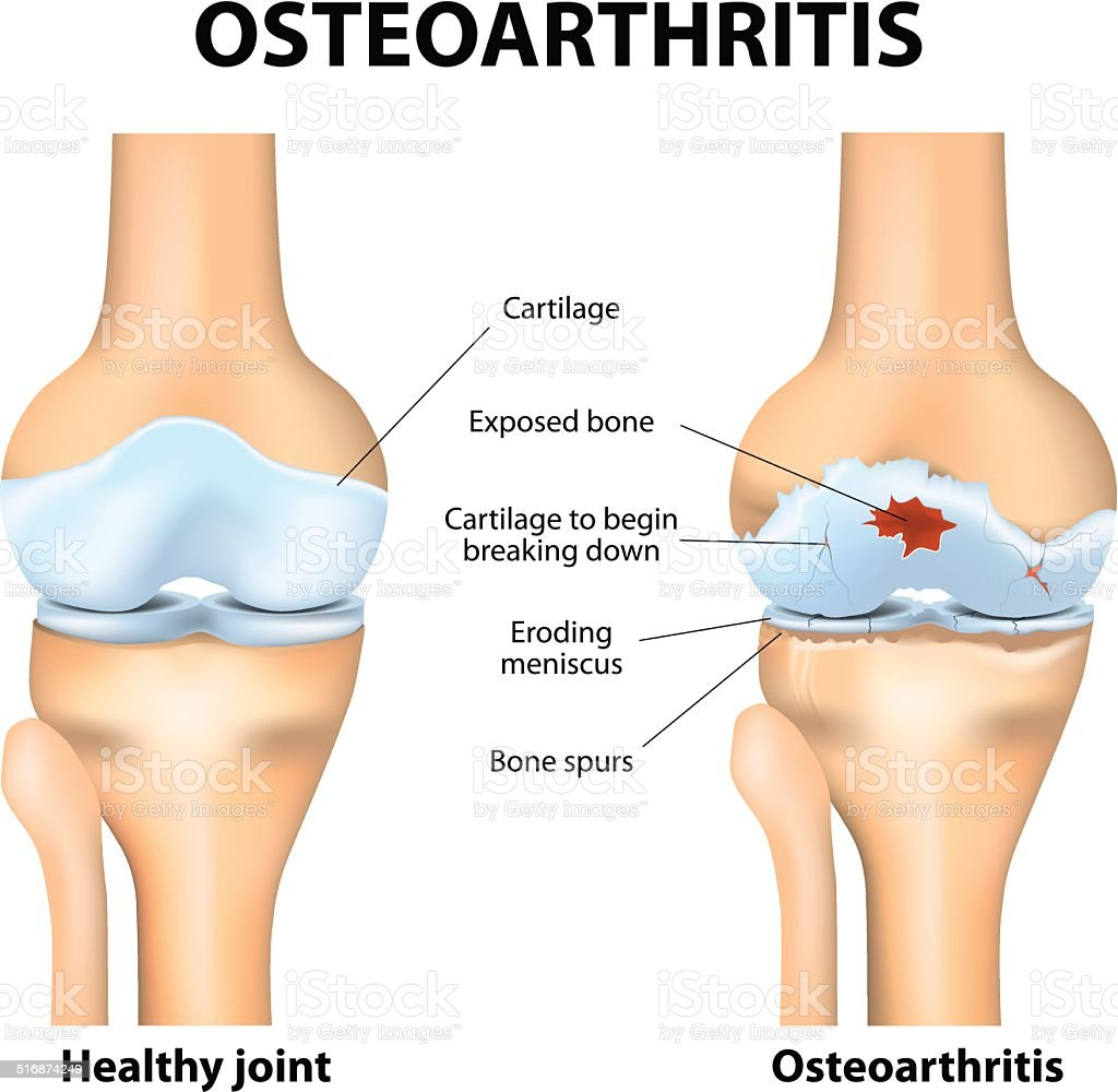 Osteoarthritis or arthritis vector art illustration