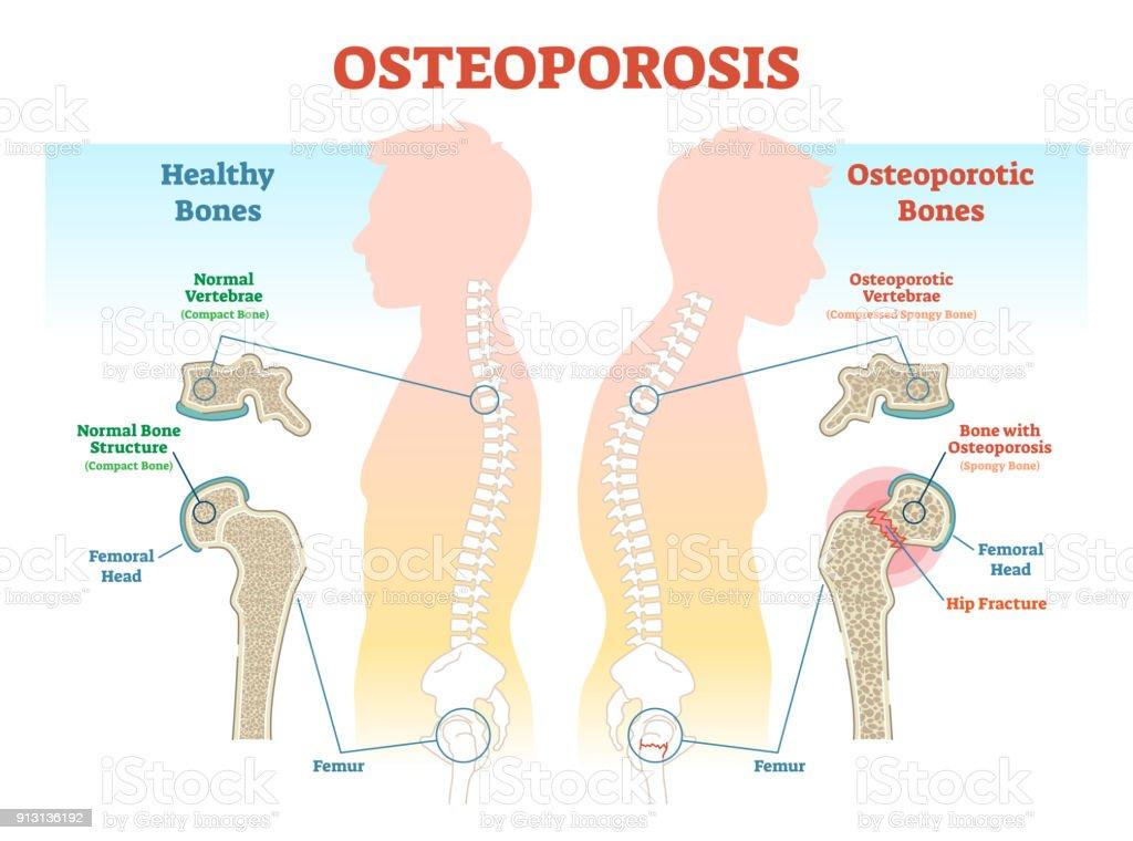 Osteoporosebeispiele Vektorillustrationdiagramm Mit Knochendichte ...