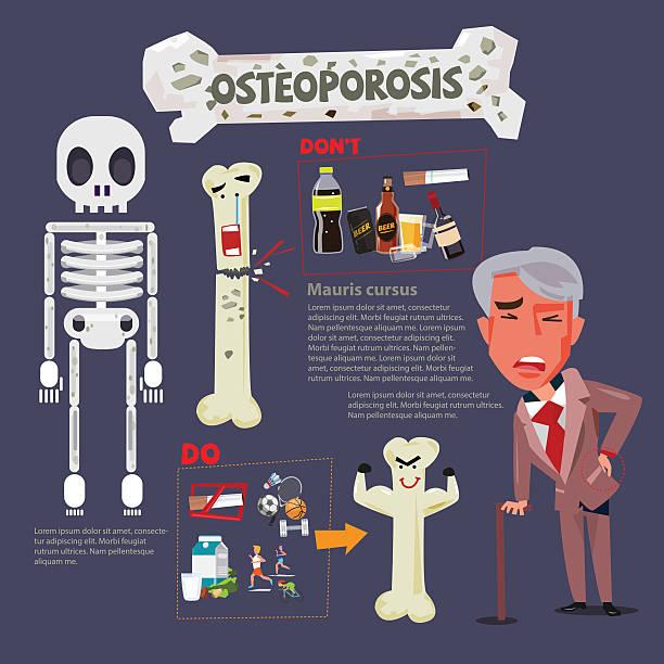 bildbanksillustrationer, clip art samt tecknat material och ikoner med osteoporosis infographic icon - vector illustration - coffe with death