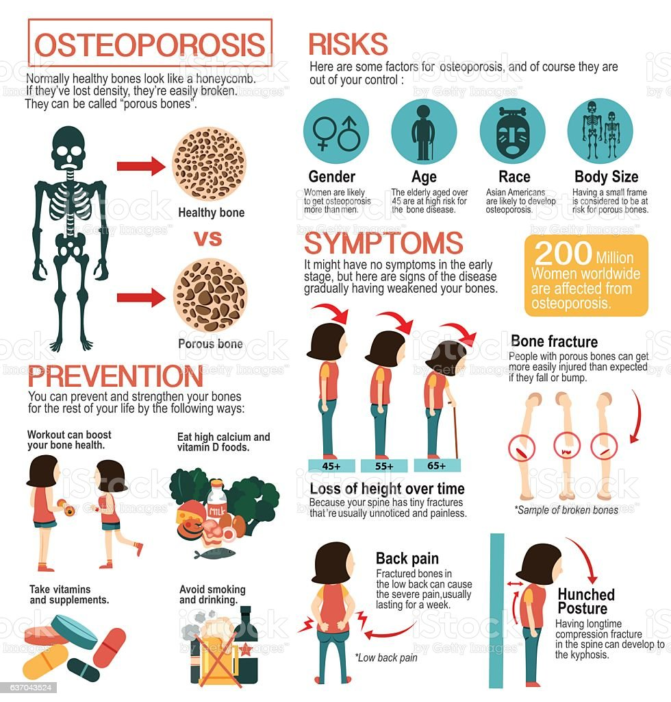 osteoporosis infographic vector art illustration