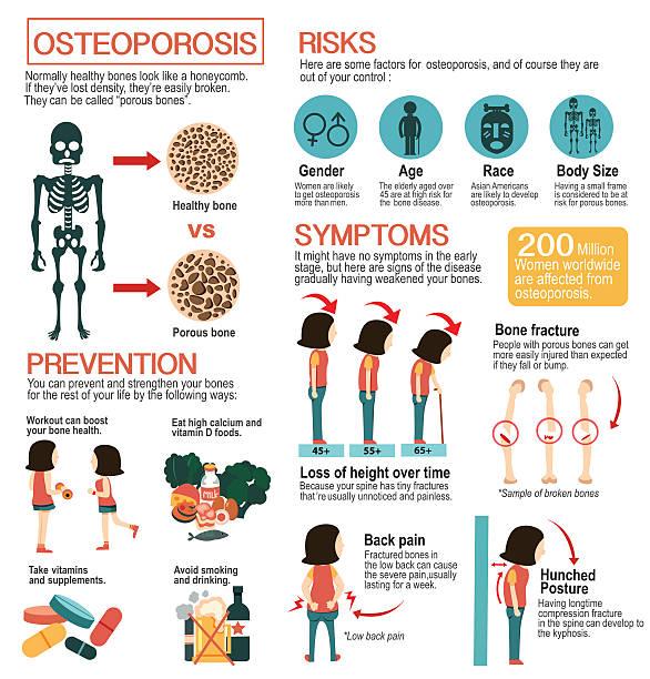 osteoporosis infographic vector art illustration