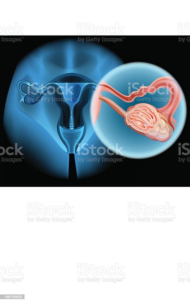 Ovarian Cancer Diagramm In Frau Stock Vektor Art und mehr Bilder von ...
