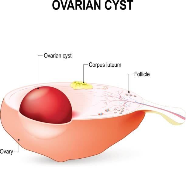 ilustraciones, imágenes clip art, dibujos animados e iconos de stock de quiste en el ovario - ovario