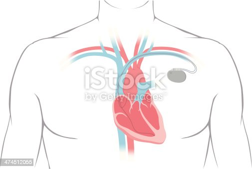 Cross section of a human heart with pacemaker fitted, showing the major arteries and veins. This is an EPS 10 vector illustration and includes a high resolution JPEG.