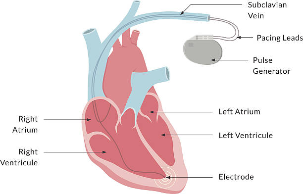 Pacemaker with Labels Diagram of a dual-chamber / double lead pacemaker with key parts labelled. This is an EPS 10 vector illustration and comes with a high resolution JPEG. pacemaker stock illustrations