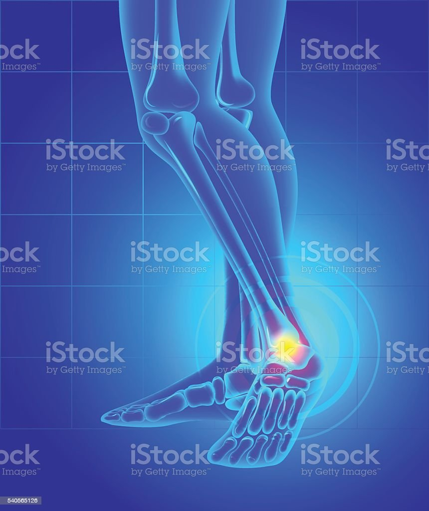 Pain and swelling on the inside of the ankle. vector art illustration