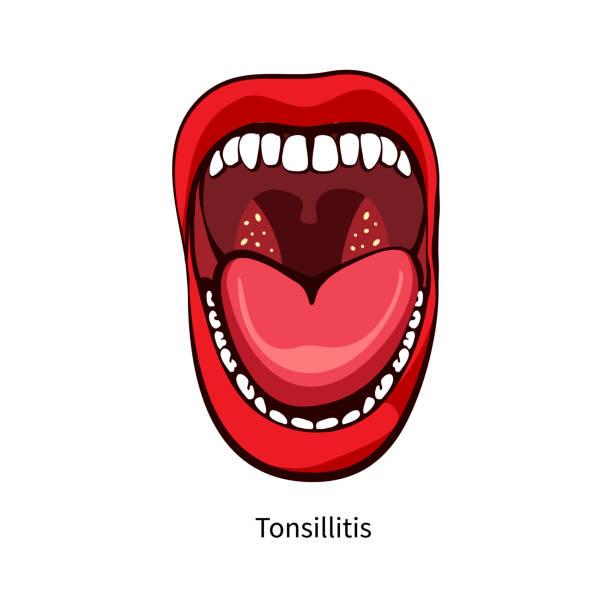 illustrazioni stock, clip art, cartoni animati e icone di tendenza di pain in throat. women open mouth - smile woman open mouth
