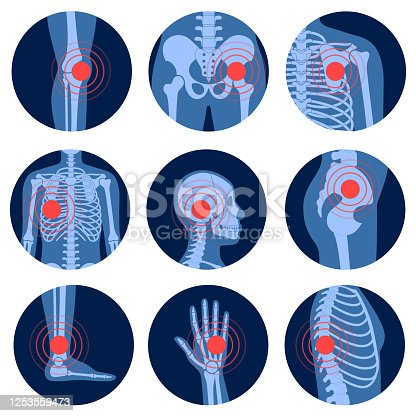 istock Pain4_Skeleton 1253559473
