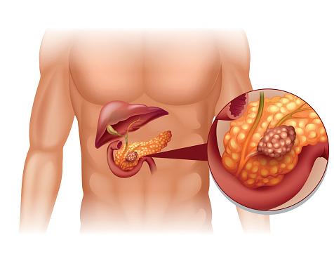 pancreas cancer ile ilgili görsel sonucu