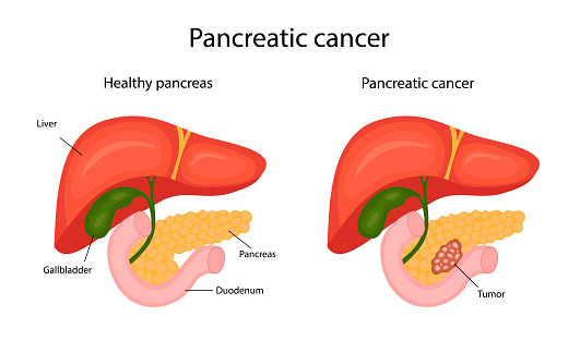 pancreatic cancer. infographics. vector illustration in cartoon style.
