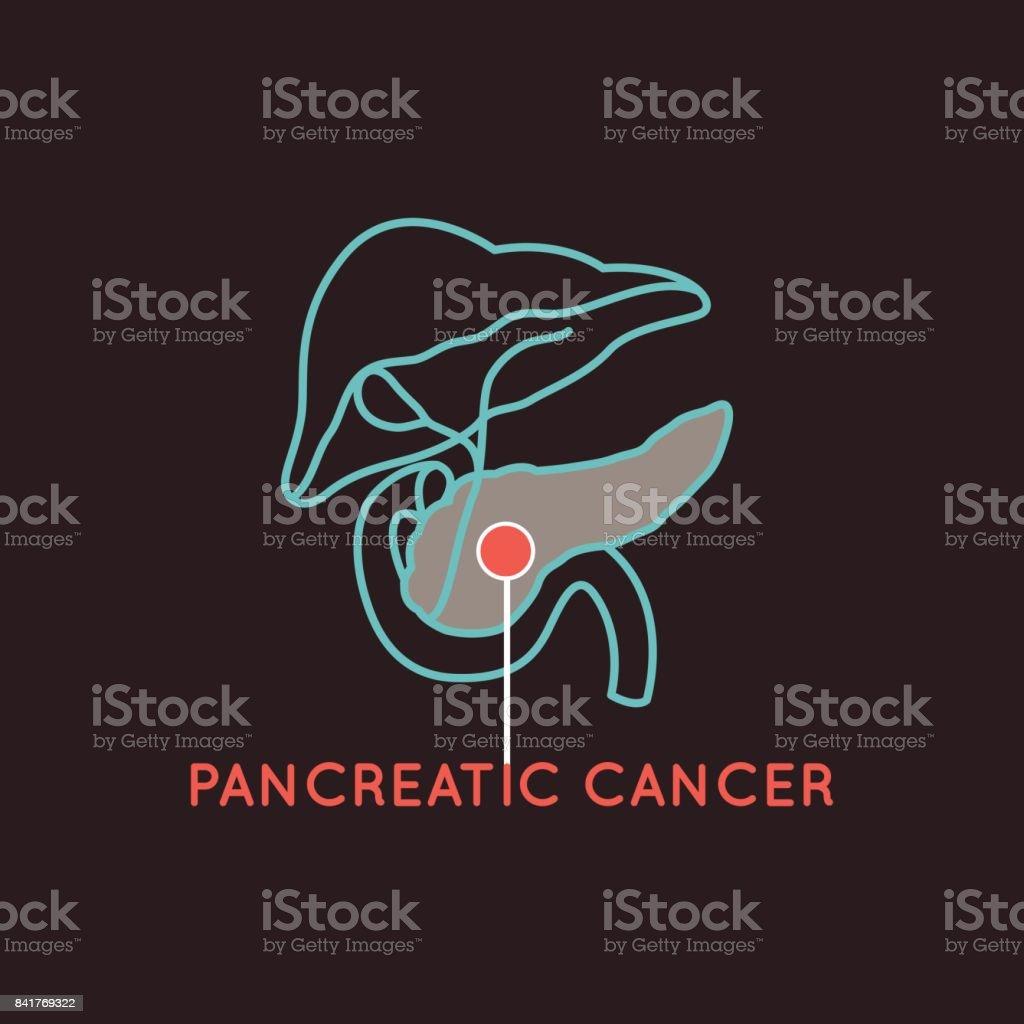 Bauchspeicheldrüsenkrebs Vektorgrafiksymbol Stock Vektor Art und ...