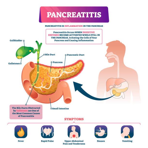 Pancreatitis vector illustration. Labeled sick pancreas inflammation scheme vector art illustration