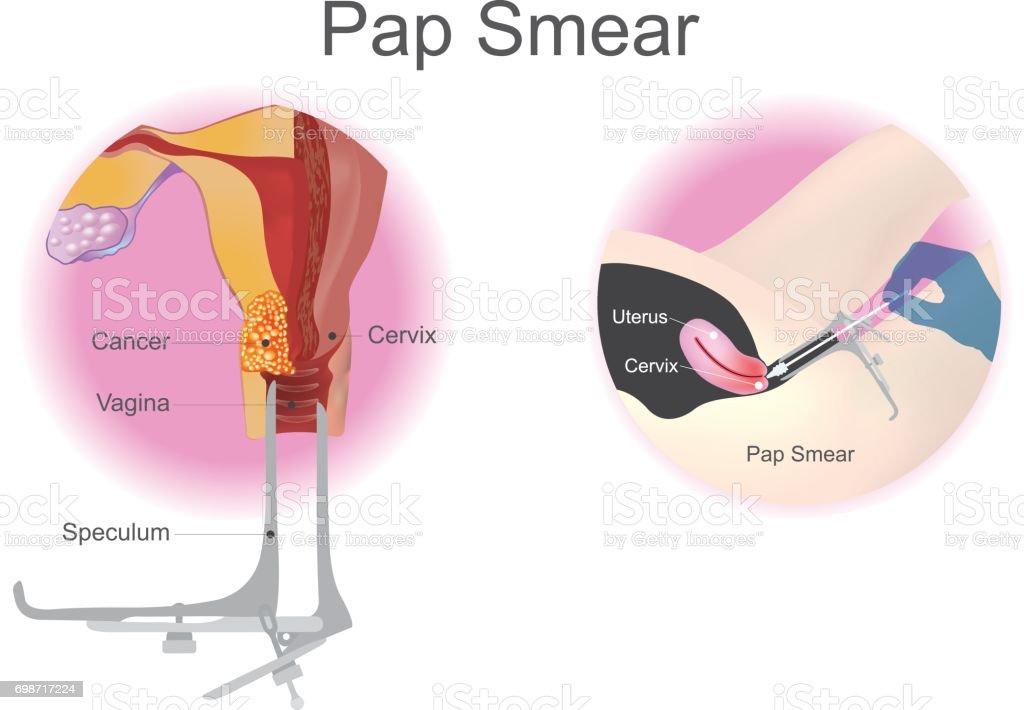 Pap smear is a screening procedure for cervical cancer. Vector design. vector art illustration