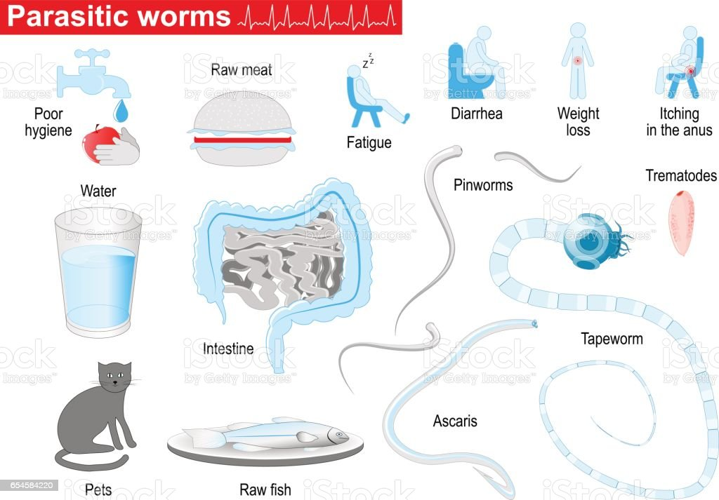 Parasitic Worms Medical Infographic Set Stock Vector Art More