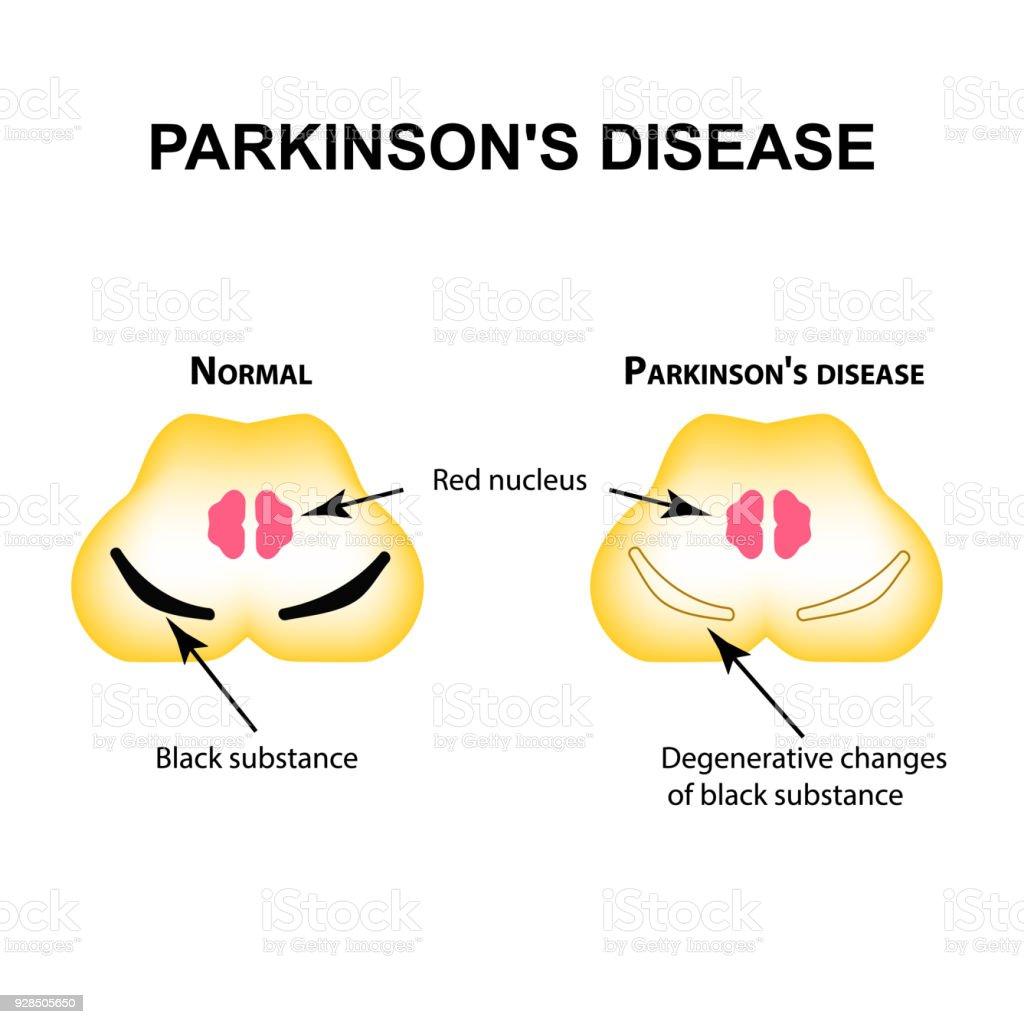 Ilustración de Enfermedad De Parkinson Cambios Degenerativos En El ...