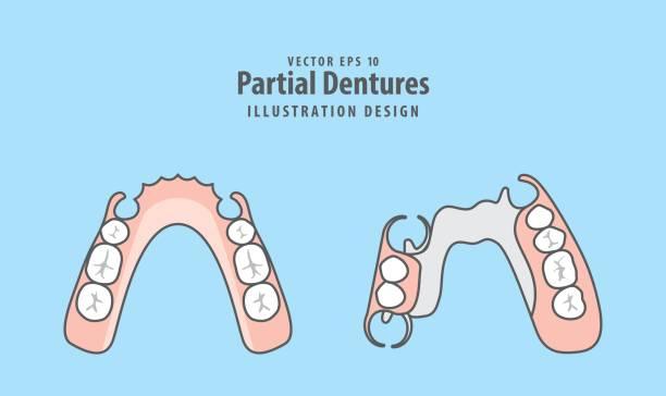 Partial Dentures illustration vector on blue background. Dental concept. vector art illustration
