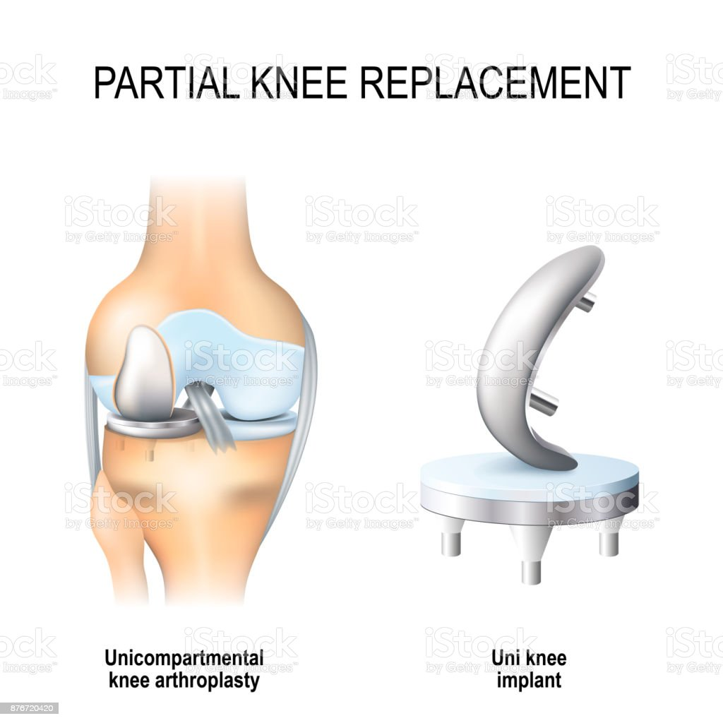 partial knee replacement. vector art illustration