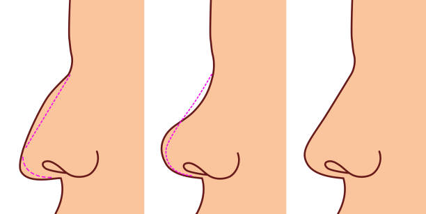 Pastic surgery performed on the nose. Before and after Pastic surgery performed on the nose. Before and after septum stock illustrations